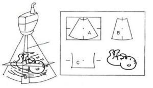 planos ecografía